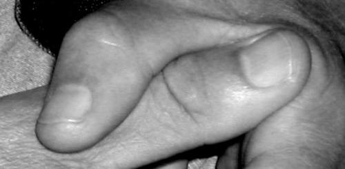 author's thumbs